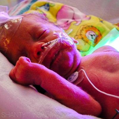 Are you at Risk for Premature Birth?