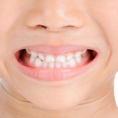 Teething Induced Eczema
