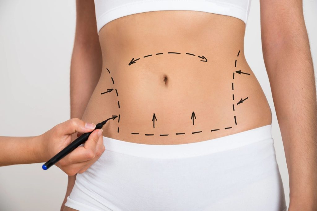 Tummy Tuck Recovery Timeline