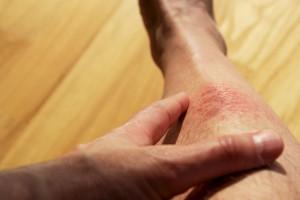 skin cancer surgery minneapolis