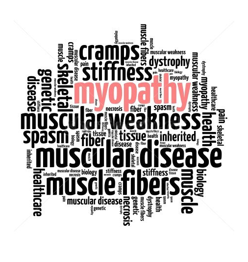 Muscle Dystrophy