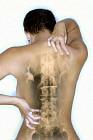 The Fibromyalgia Mystery