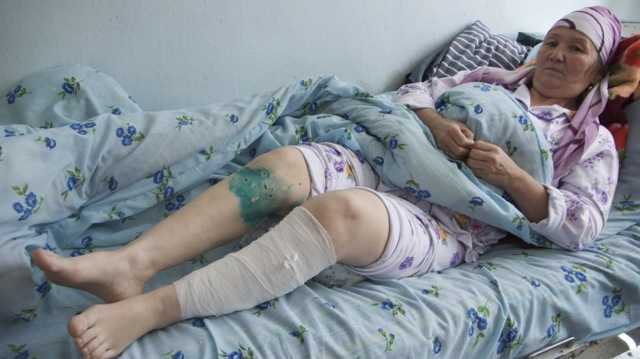 An Old Woman Trying To Recover From Her Injuries