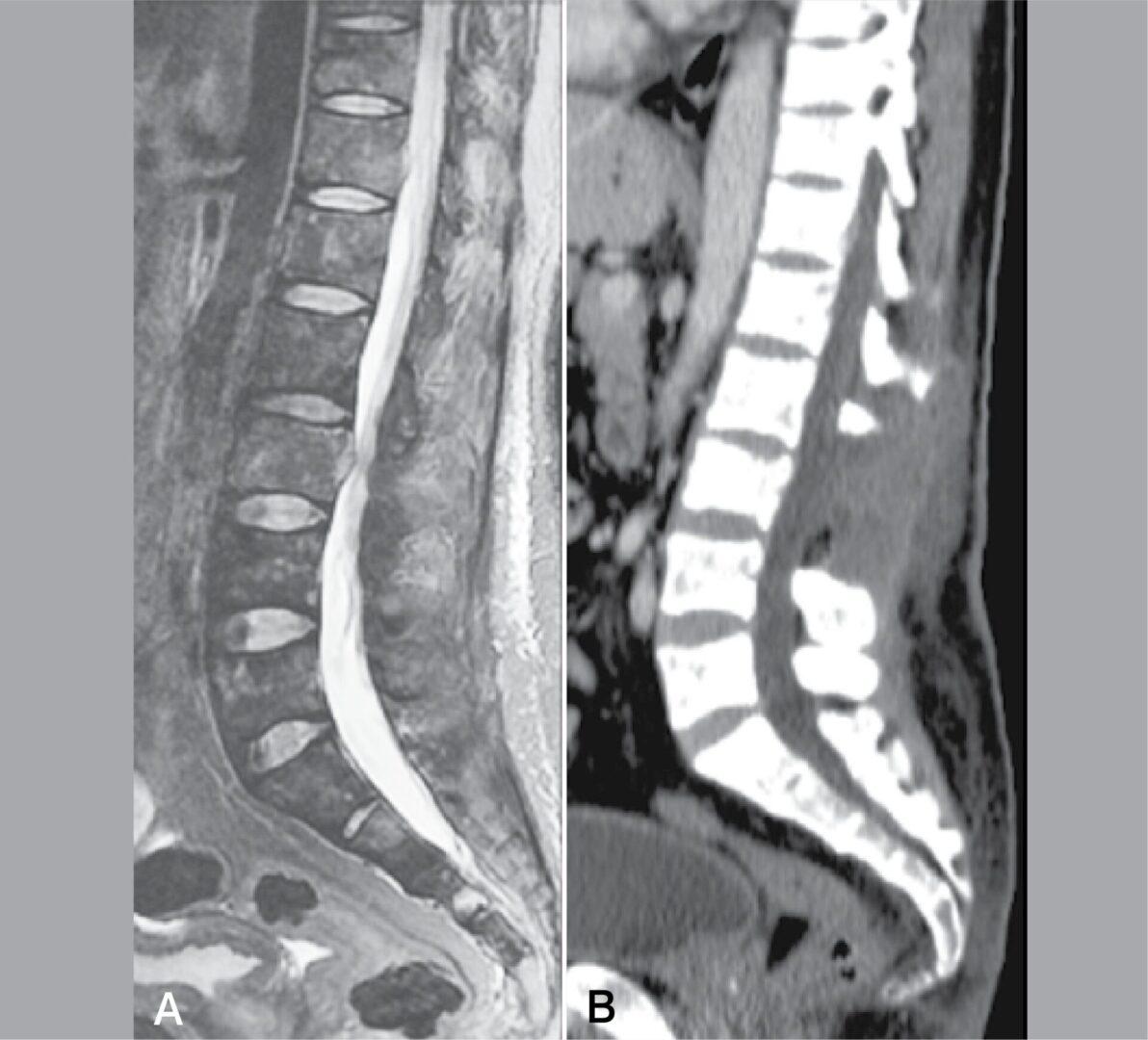 IVD MRI