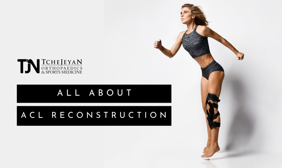 All About ACL Reconstruction
