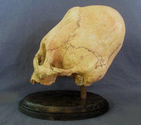 Peruvian Giant Skull 6