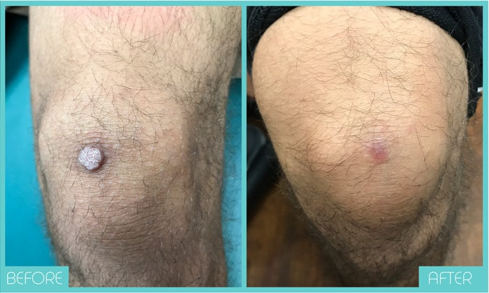 Skin Tags Removal Tampa | Mole Removal Before and After | Skintellect