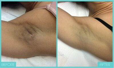 Underarm Before & After Bleaching