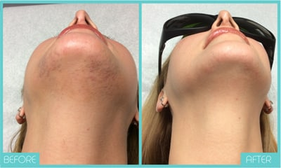 Laser Hair Removal | Before and After Chin | Skintellect