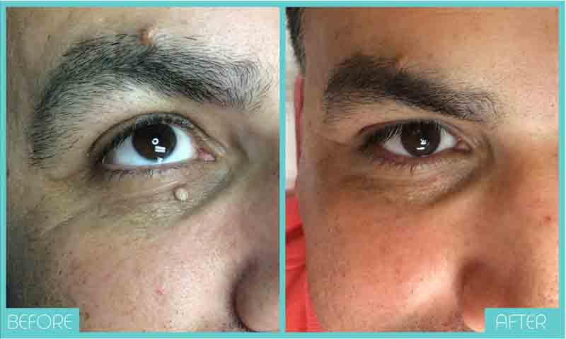 Skin Tag Removal Before and After | Skintellect