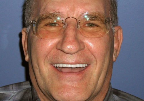 Happy patient photo after full mouth of implants