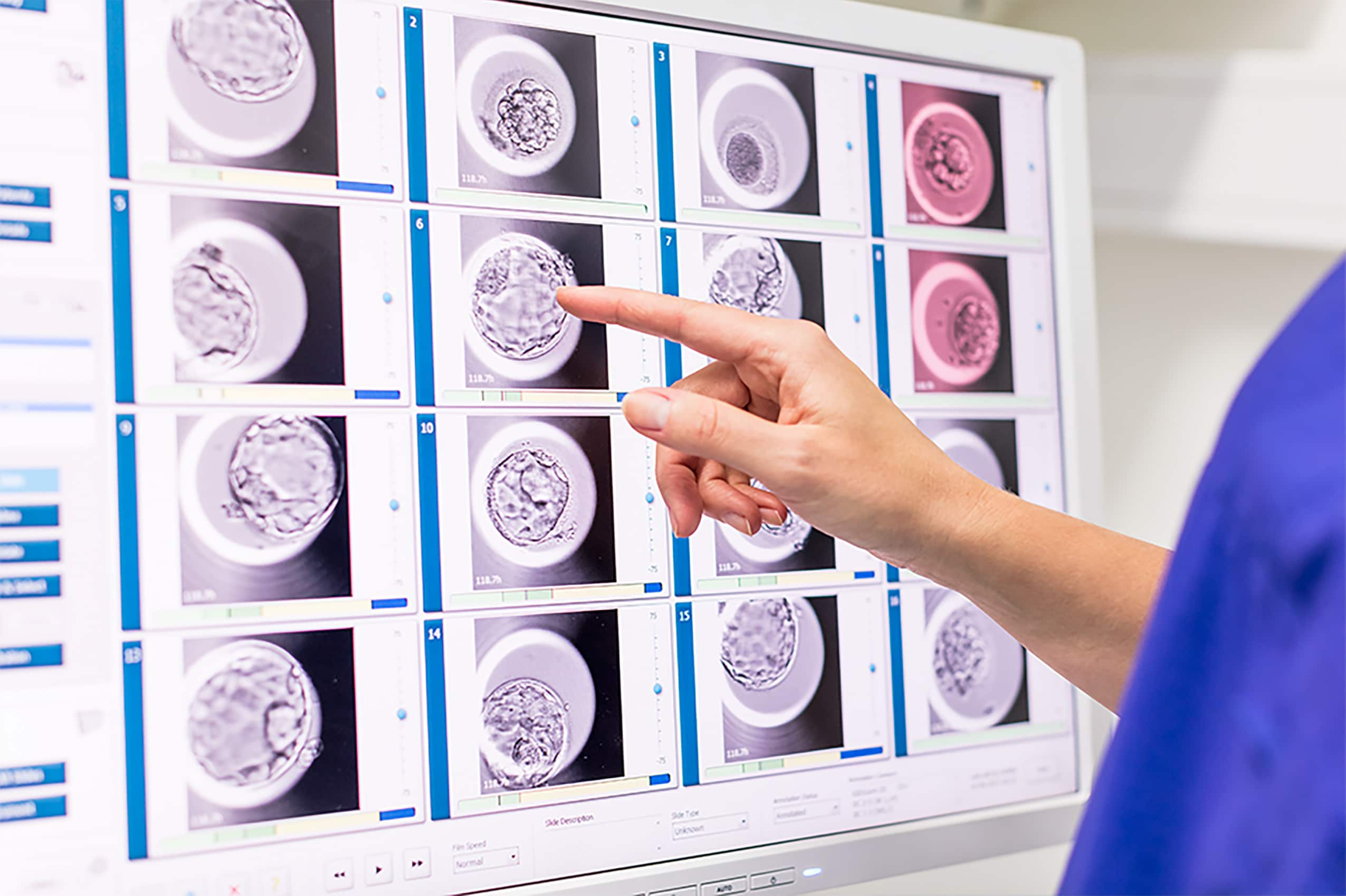 IVF Doctor Looking at Embryoscope Scans at Cyprus IVF Centre