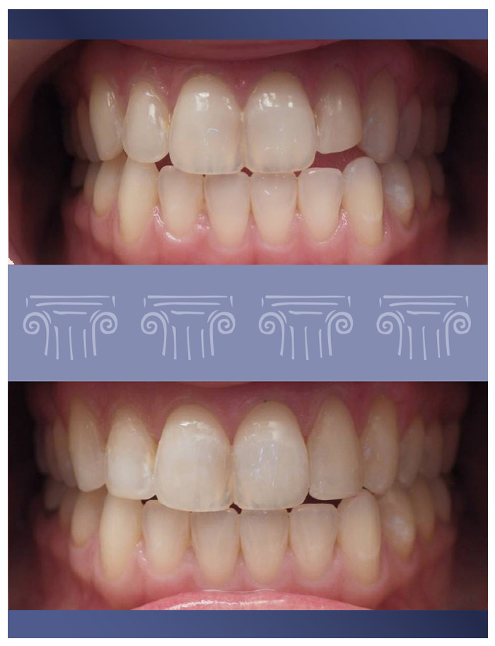 Veneers and 3/4 crowns