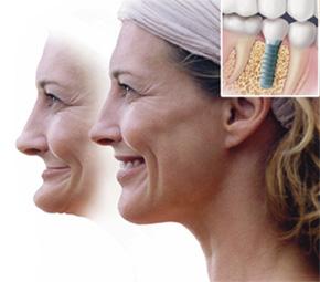 Sandy Springs Implant dentist near me