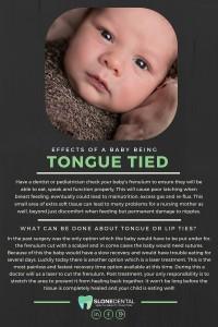 tongue tied (1)
