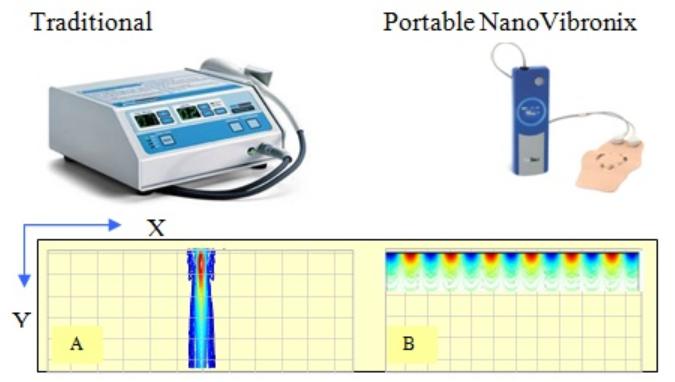 nanovibronix, biotech stock review