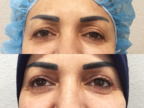 Blepharoplasty Upper 1
