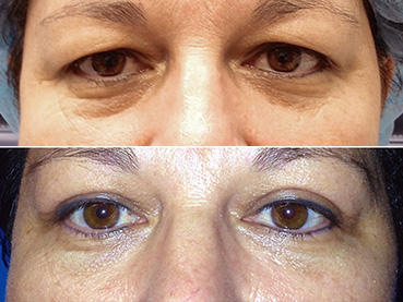 Upper Eyelid Case 3