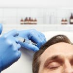 an injection into a mans head intended to stimulate hair growth
