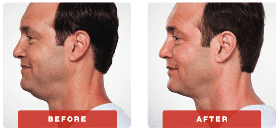 Kybella Before and After