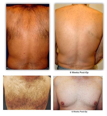 Rohrer Spectrum Laser - Hair Removal B&A