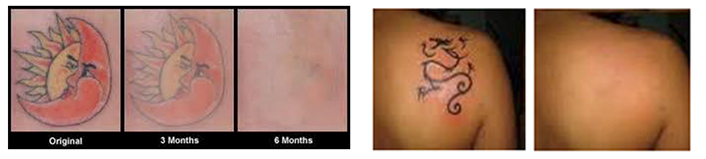 Rohrer Spectrum Laser - Tattoo Removal Treatment B&A