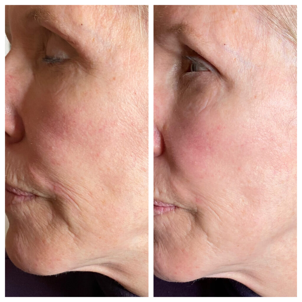 Lunchtime Laser Lift Results