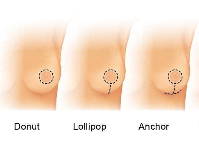 breast reduction, breast lift, plastic surgery, scar pattern, anchor incision