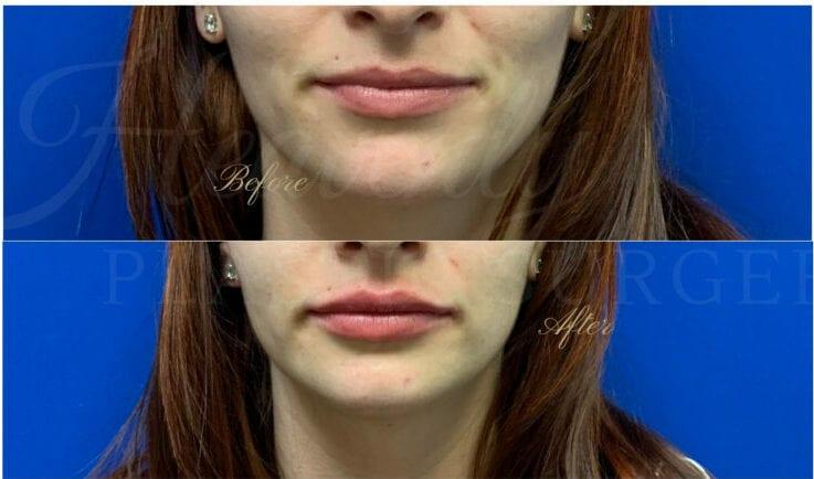 Lip filler, lip injection, juvederm, volbella, bigger lips, more lip volume