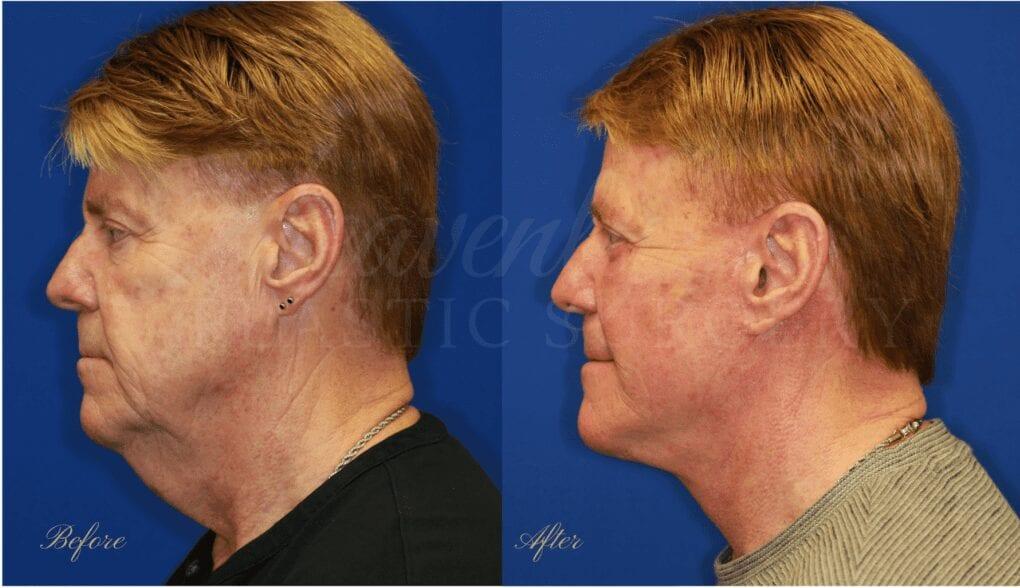 facelift, face lift, neck lift, plastic surgery