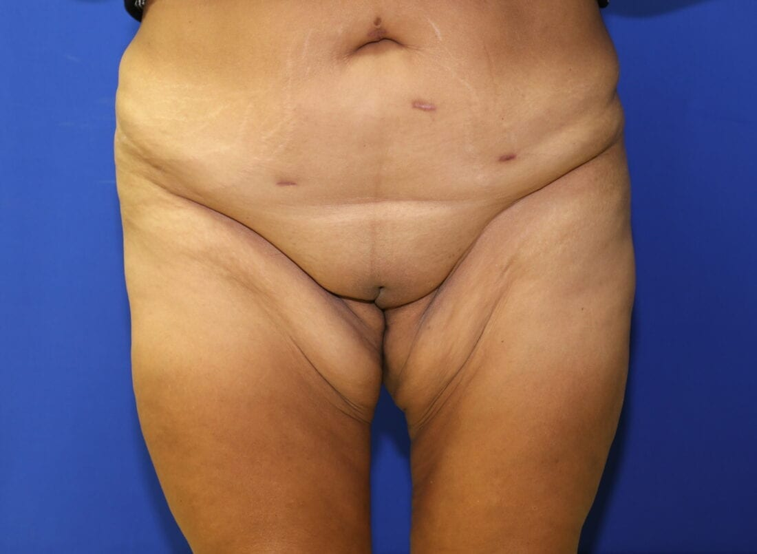 thigh lift preoperative