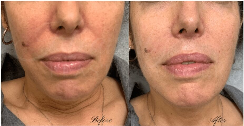 filler, juvederm, vollure, nasolabial fold filler, cheek lines