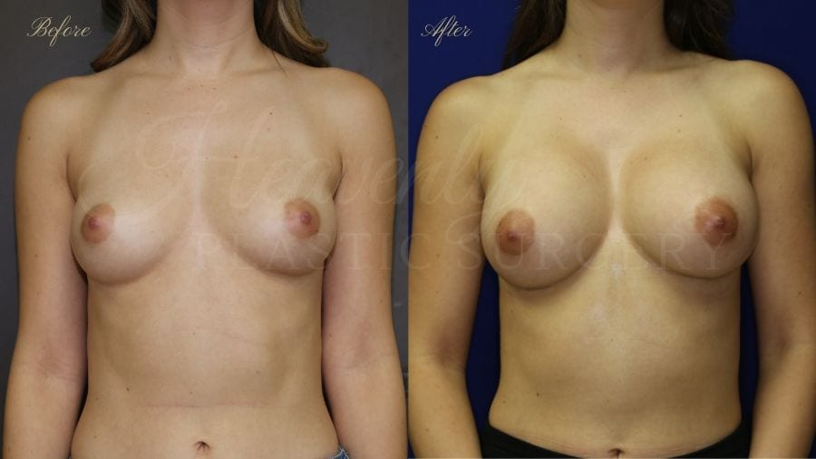Before and after of a 20 year old female who had a breast augmentation with silicone implants