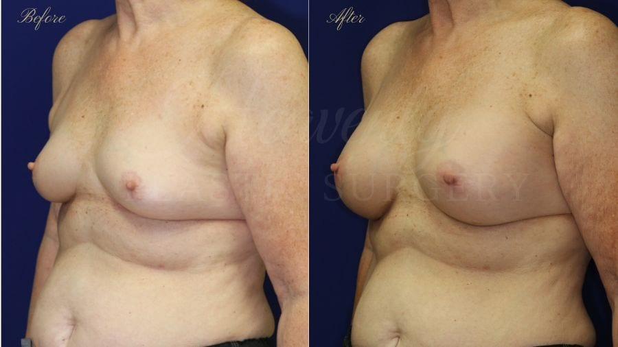 breast augmentation, enhanced breasts, boob job, implants, silicone implants, small implants, natural implants