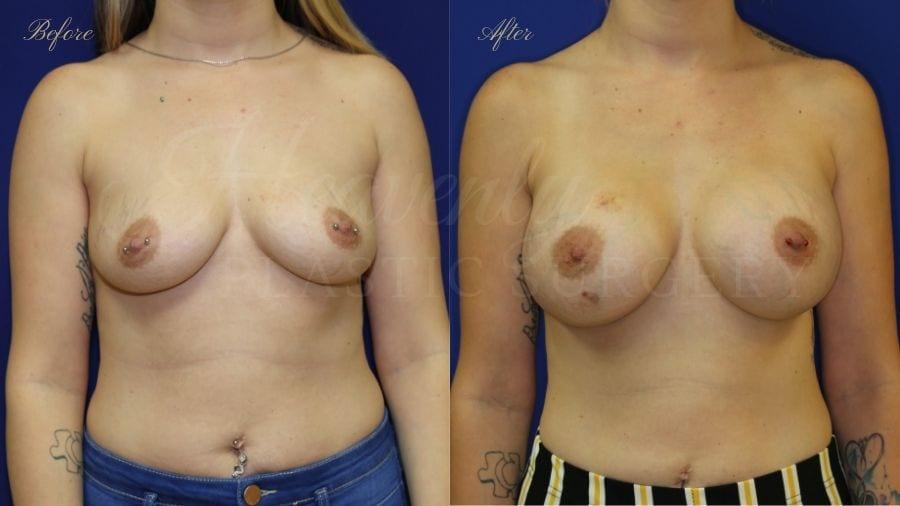 Plastic surgery, plastic surgeon, breast augmentation, breast implants, augmentation mammaplasty, before and after breast augmentation, bigger breasts, bigger boobs, boob job, silicone implants