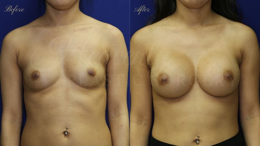Plastic surgery, plastic surgeon, breast augmentation, breast implants, augmentation mammaplasty, before and after breast augmentation, bigger breasts, bigger boobs, boob job
