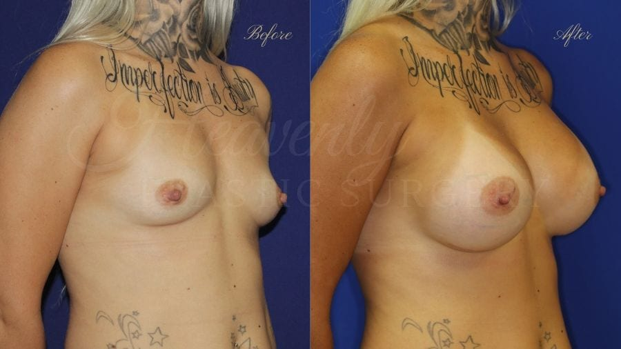 Plastic surgery, plastic surgeon, breast augmentation, breast implants, augmentation mammaplasty, before and after breast augmentation, bigger breasts, bigger boobs, boob job