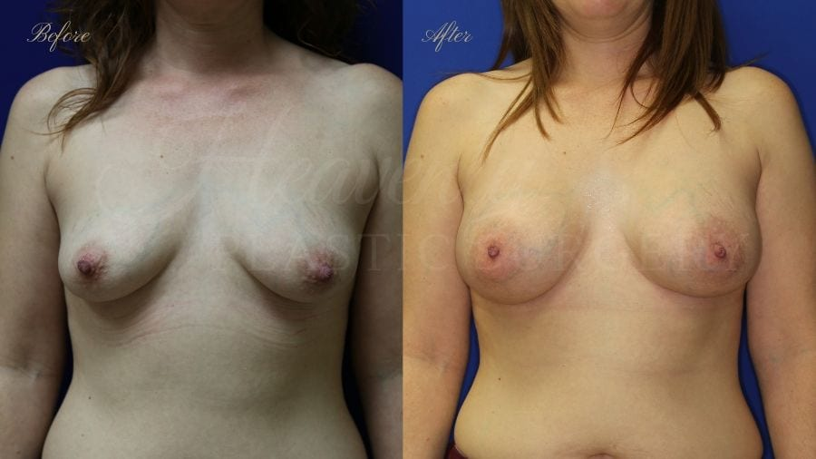 breast augmentation, enhanced breasts, boob job, implants, silicone implants