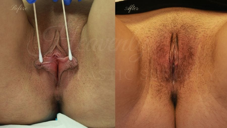 Labiaplasty, vaginal surgery, vaginal rejuvenation, vaginal reconstruction