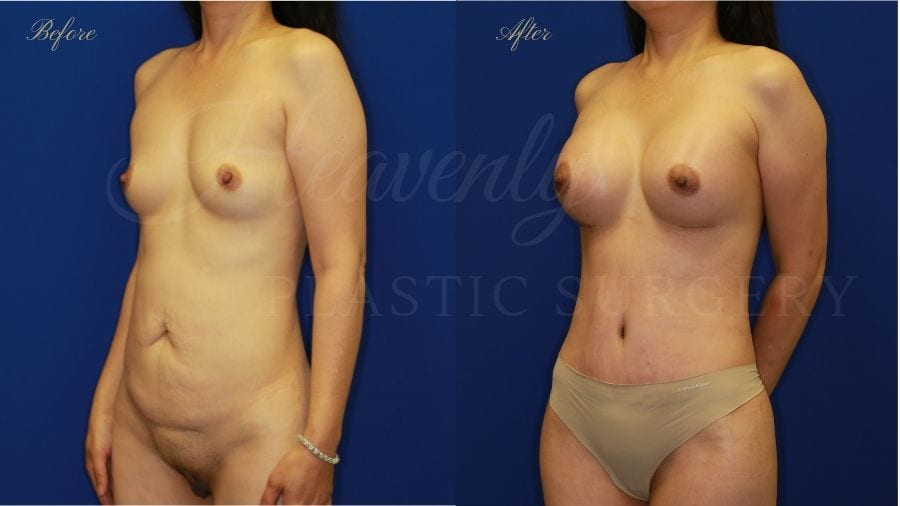Mommy Makeover, Breast Augmentation, Breast Implants, Tummy Tuck, Abdominoplasty