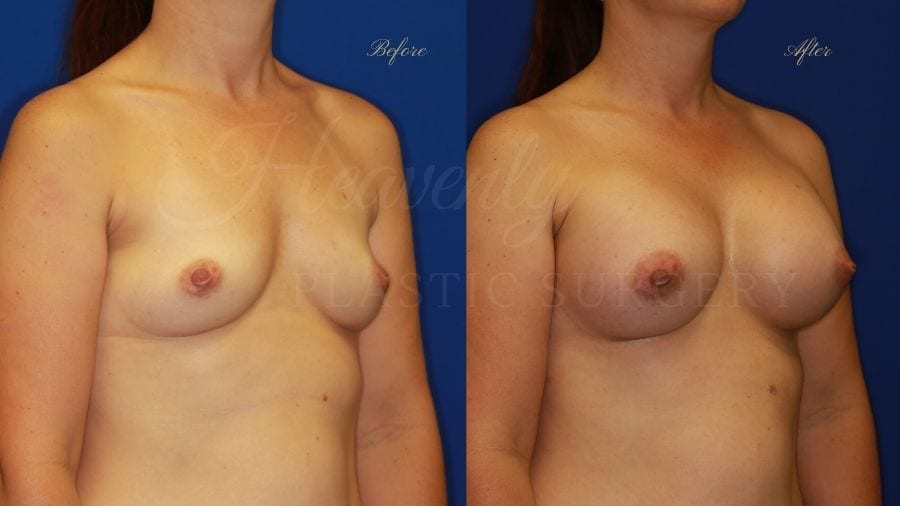 Plastic Surgery, Plastic surgeon, breast augmentation, breast implants, augmentation mammaplasty