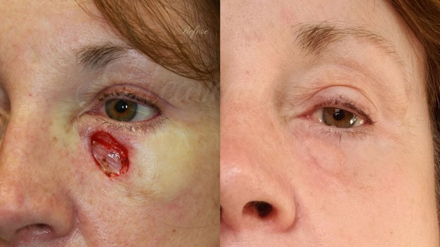 Plastic surgery, plastic surgeon, skin cancer, skin cancer reconstruction, MOHS surgery, basal cell carcinoma, basal cell skin cancer