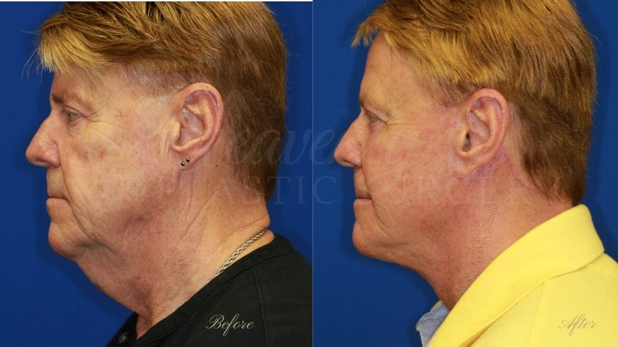 face lift, cosmetic surgery, neck lift, plastic surgery, before and after face lift, face surgery, plastic surgery