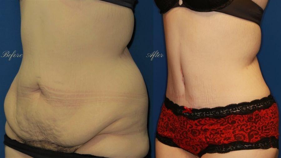 Plastic Surgery, plastic surgeon, tummy tuck, abdominoplasty, weight loss