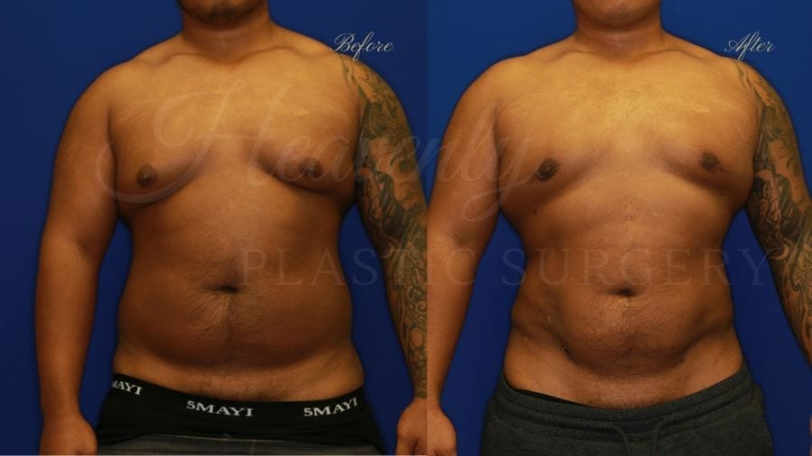 Plastic surgery, plastic surgeon, liposuction abdomen flanks back, lipoetching abdomen