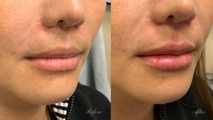 Lip filler, lip injection, juvederm, volbella, bigger lips, more lip volume