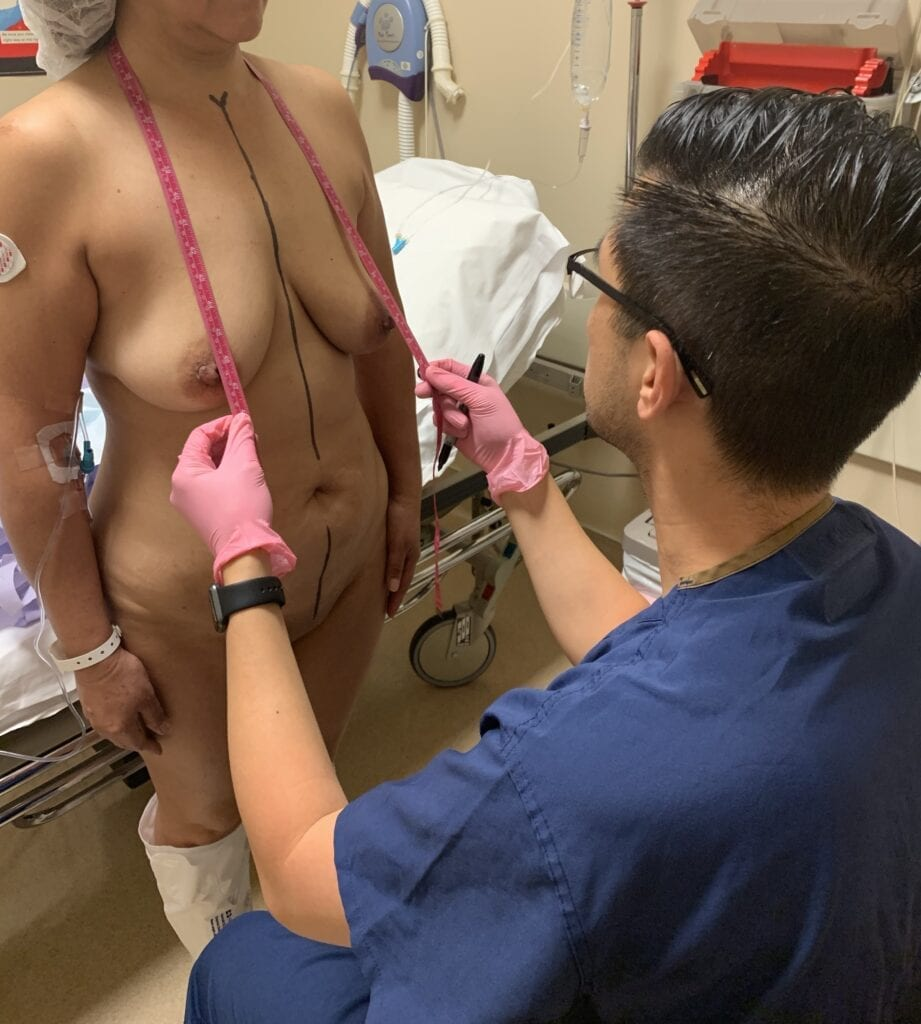 Dr. Nguyen preparing to perform a tummy tuck with the mommy makeover