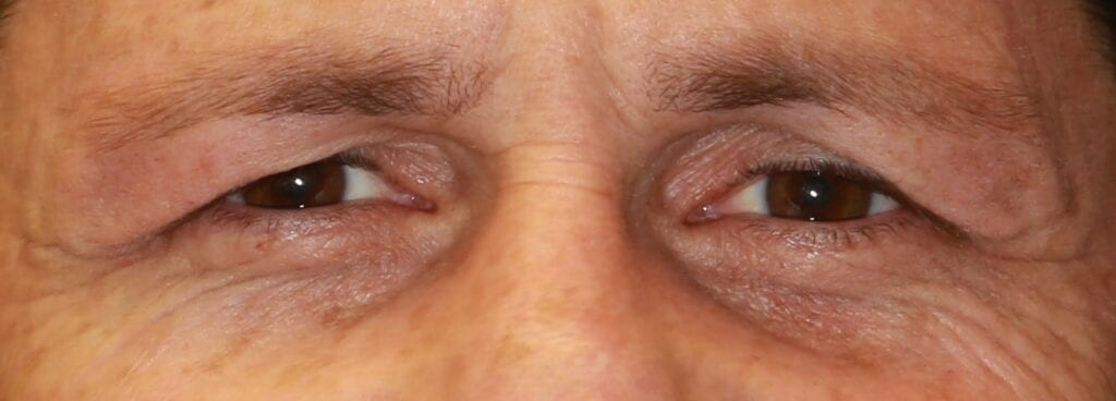 sagging old eyelid skin