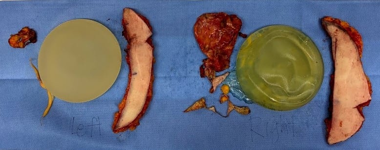 ruptured implant with breast tissue, breast implant removal, breast explantation