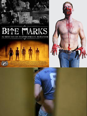 bite marks collage 2